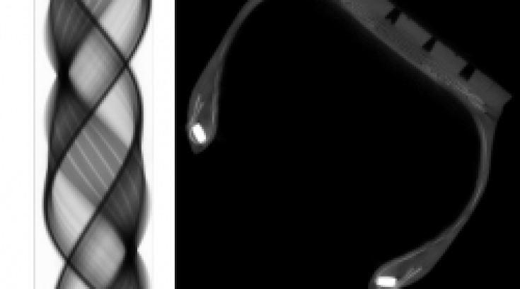 2D Computed Tomography